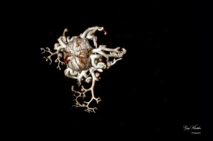 Basket Star (local)- Gary Hardaker